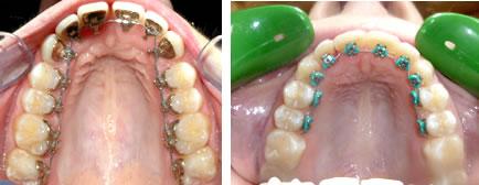 Orthodontiste valenciennes orthodontie lille cabinet for Interieur de la bouche